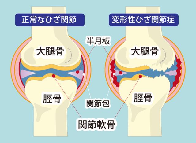 変形性膝関節症の対処法は?