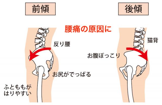 産後の腰痛の原因