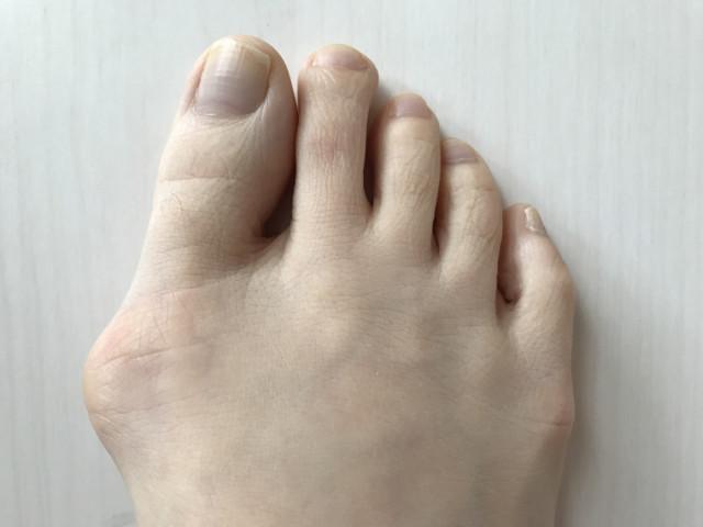 外反母趾の改善に際し、大切にしていることは?